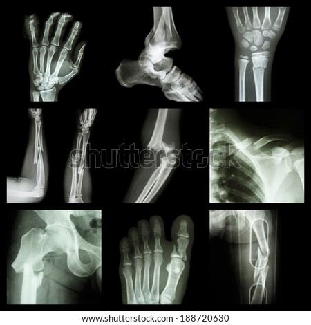 Collection of bone fracture - stock photo