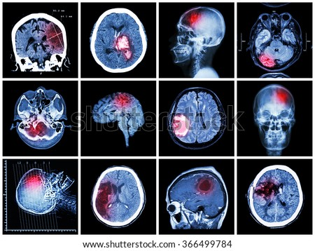 Collection of brain disease ( CT scan and MRI of brain : show cerebral infarct , intracerebral hemorrhage , brain tumor , basal ganglia hemorrhage ( status post craniotomy ) ) ( health care concept ) - stock photo