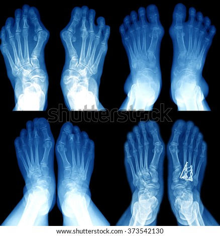 collection of film x-ray image of foot - stock photo