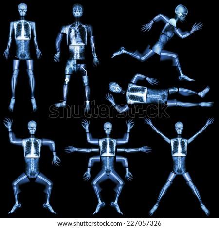 collection human skeleton xray whole body stock photo 227057326, Skeleton