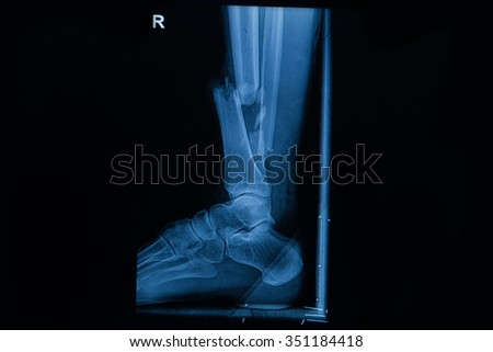 Collection of human x-rays  showing fracture of right leg ,  post operated with external fixed  - stock photo