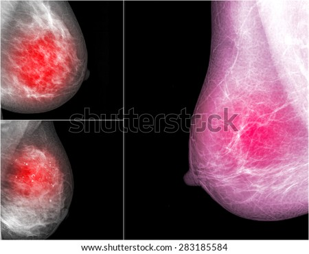 collection of Mammogram radio imaging for breast cancer  - stock photo