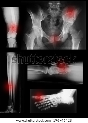 collection of x-ray, broken  - stock photo
