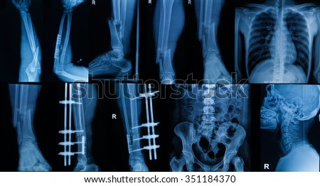 Collection of  X-ray , Multiple part of adult  show fracture bone and  disease - stock photo