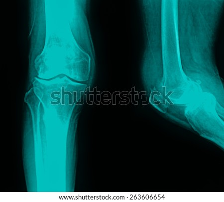 collection of x-ray normal knee - stock photo