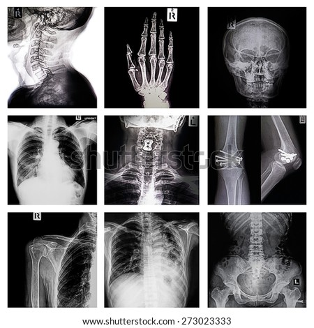 Collection X-ray multiple organ