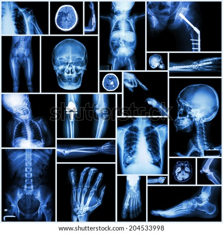 """Collection X-ray """"Multiple part of human"""" ,""""Orthopedic surgery"""" and """"Multiple disease"""" (Fracture,Shoulder dislocation,Osteoarthritis knee,Bronchiectasis,Lung disease,Stroke,Brain tumor, etc) - stock photo"""