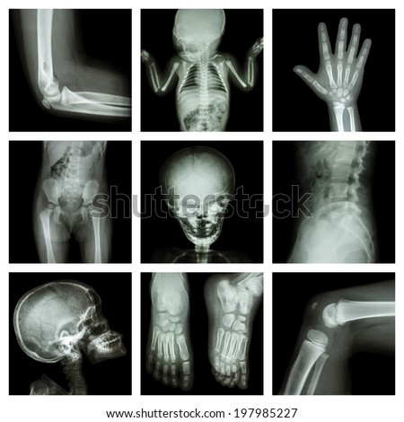 Collection X-ray part of child