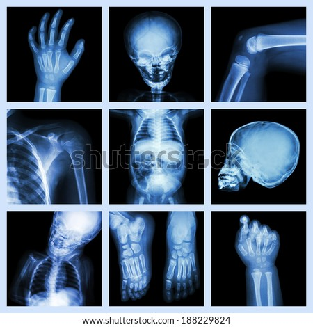Collection x-ray part of child body - stock photo