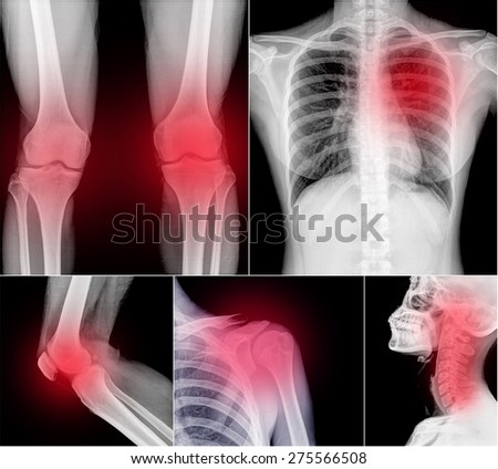 Collection X-ray part of human  - stock photo