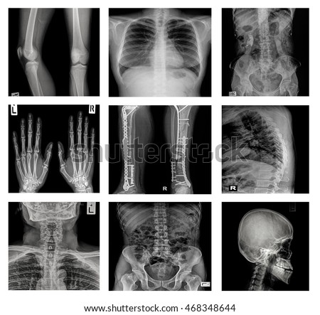 Collection X-ray part of human,Orthopedic operation,Multiple disease (Fracture,Gout,Rheumatoid arthritis,Osteoarthritis knee,Stroke,Brain tumor,Scoliosis,Tuberculosis, etc.)