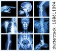 Collection X-ray part of human (Version 2) - stock photo