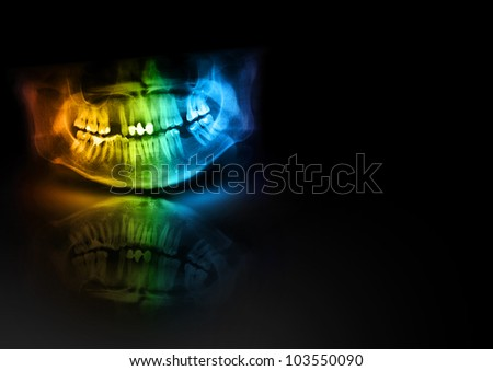 Color x-ray teeth jaw human cranium. Panoramic negative photo facial image of mouth young adult male. Medical design element sample blank template horizontal paper size A4. - stock photo