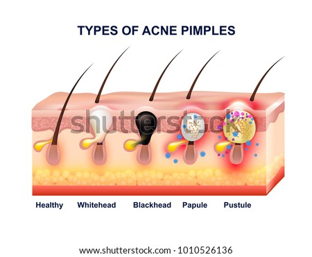 Acne Pimple Diagram Auto Electrical Wiring Diagram