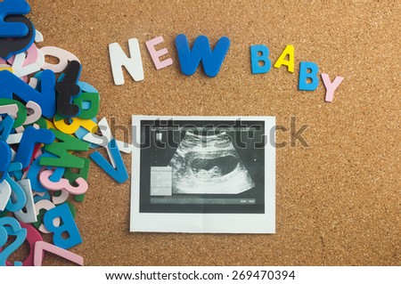 Colourful word new baby and ultrasound image with  cork board as background - stock photo