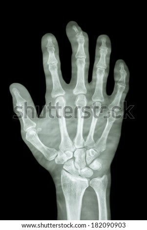 comminute fracture distal pharange of middle finger