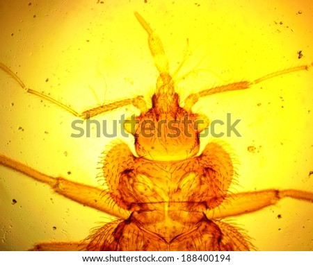 Common bed bug (Cimex lectularius) head - permanent slide plate under high magnification - stock photo