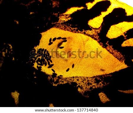 Common liver fluke (Fasciola hepatica) digestive system - permanent slide plate under high magnification - stock photo