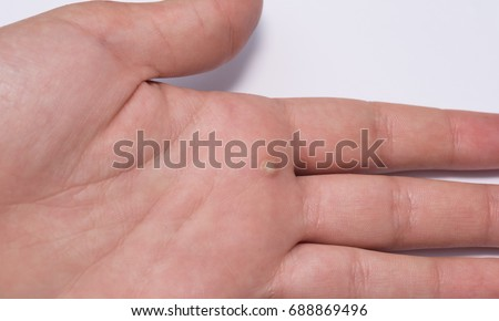 Common Wart Verruca Vulgaris A Flat Commonly Found On The Hands And Feet