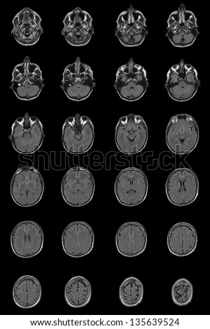 complete adult normal human brain mri on pure black background - stock photo
