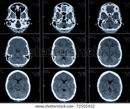 computer tomography CT photo of human brain - stock photo