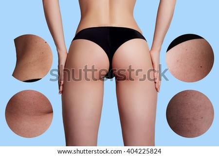 Concept skincare.The skin on the thighs of a young woman before and after cosmetic procedures. Cellulite treatment program for women, weight loss. over background with copy space. - stock photo
