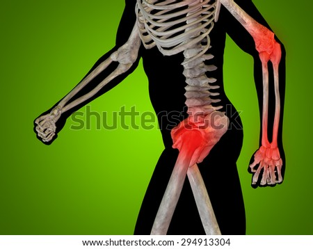 Conceptual 3D human man anatomy or health design, joint or articular pain, ache or injury over green gradient background for medical fitness medicine bone care hurt osteoporosis painful arthritis body - stock photo
