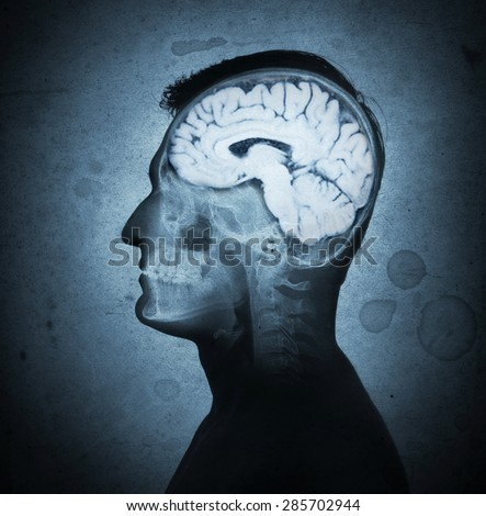 Conceptual image of a man from side profile showing brain and brain activity. Retro stale.