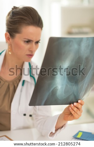 Concerned doctor woman looking on fluorography - stock photo