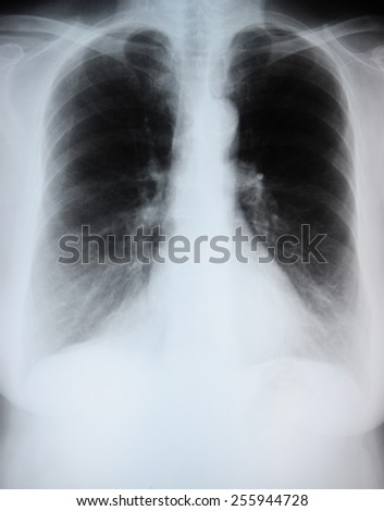 COPD in an elderly female smoker. - stock photo