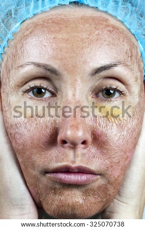 """Cosmetology.Skin in the course of rejection after a deep chemical peeling. """"Parchment"""" skin before rejection.  - stock photo"""