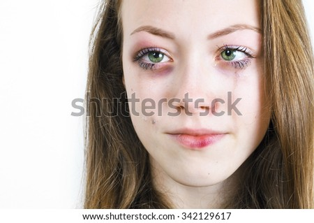 Crying girl with bruised skin and black eye caused by domestic violence