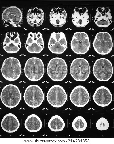 CT brain scan with contrast enhancement of a 12 years old girl who has fever with drowsiness:Demonstrated leptomeningeal enhancement at bilateral parietal regions,and mucosal thickening at nasopharynx