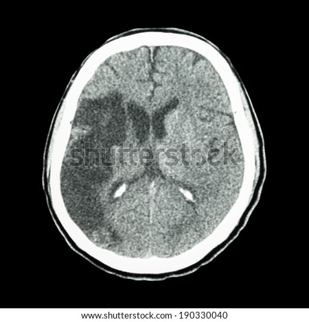 CT brain : show Ischemic stroke (hypodensity at right frontal-parietal lobe) - stock photo