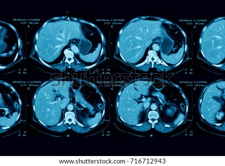 CT scan of abdominal pain