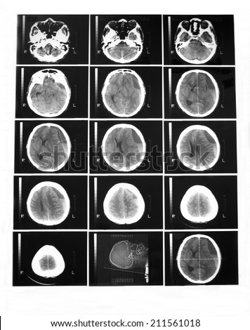 CT scan of brain without contrast enhancement in a 34 years old man:Demonstrated chronic subdural hematoma at left fronto-temporo-parietal lobes, 25 mm thickness,and ventricle shift 17 mm to the right - stock photo