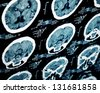 CT scan of human head, portion of slide. - stock photo