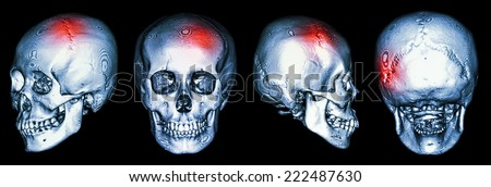 CT scan of human skull and 3D with Stroke (cerebrovascular accident) - stock photo