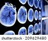 CT x-ray  - stock photo