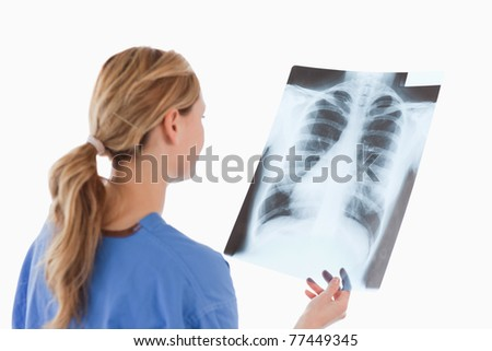 Cute blond-haired doctor looking at an X-ray on a white background