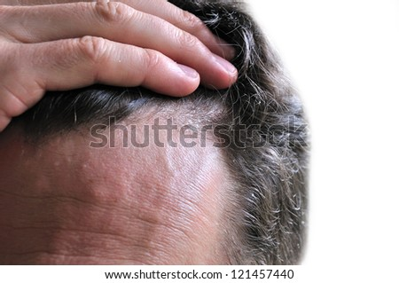 Dandruff, skin or hair health-care. Dermatology. - stock photo