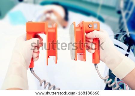 defibrillator electrodes in hands. Work in the ICU - stock photo