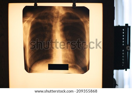 Demonstration of lung radiography with diagnosed tuberculosis, vintage - stock photo