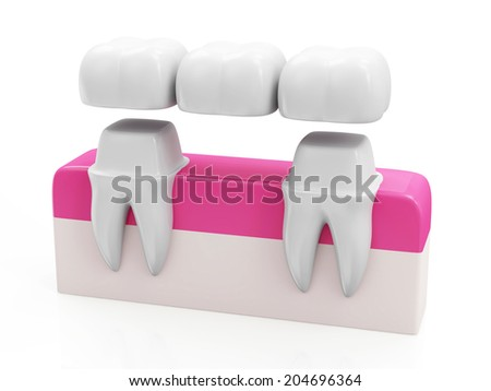 Dental Bridge Concept. Dental Crown on a Tooth isolated on white background - stock photo