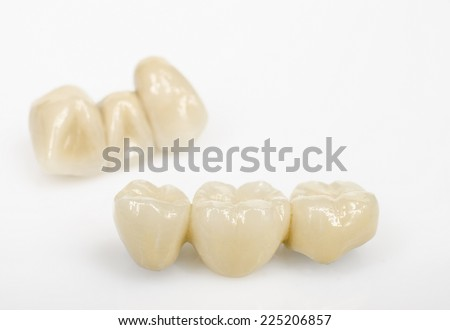 dental bridges, ceramics