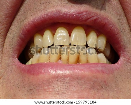 Dental care is worthwhile, it is your capital in the mouth. Neat teeth of an over 70 year old man. - stock photo