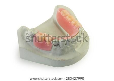 Dental cast during processing denture - stock photo