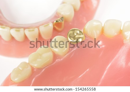 dental gold, worn dentures - stock photo
