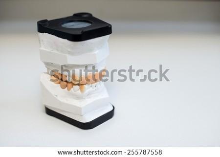 dental gypsum models, dentist's office - stock photo