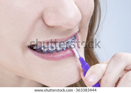 Dental Hygiene Concepts. Closeup Shot of Caucasian Teenage Girl Using Bristle Teeth Brush for Brackets. Horizontal Image Orientation